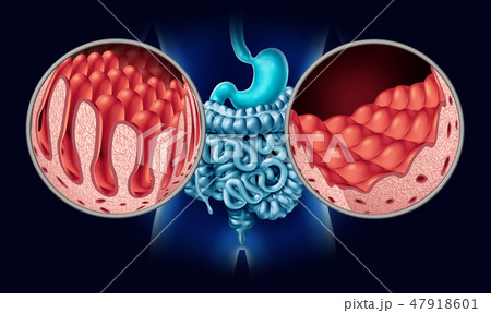 Celiac Coeliac Disease 47918601