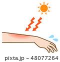 脱毛後の日焼けで炎症が起きる腕と太陽のイラスト 48077264