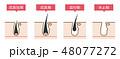 脱毛の毛周期シンプルかわいい説明図イラスト 48077272