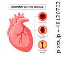疾患 動脈 幹線のイラスト 48120702
