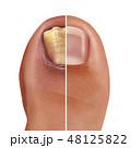 爪甲真菌症 感染症 疾患のイラスト 48125822