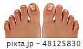 爪甲真菌症 感染症 疾患のイラスト 48125830