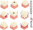 歯 虫歯 歯周病のイラスト 48902050