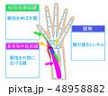 腱鞘炎 解説図 48958882