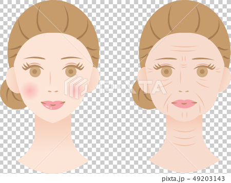 Wrinkled Woman Before After 49203143