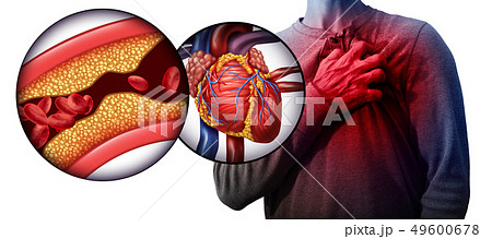 Myocardial Infarction 49600678