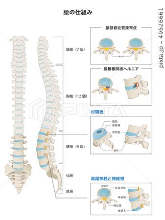 腰の仕組みと腰痛のメカニズム 49626661