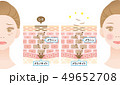 ターンオーバー 肌の断面図と女性 49652708
