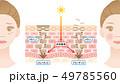 ターンオーバー 肌の断面図と女性 49785560