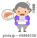 おばあちゃん 脂肪肝 49866536