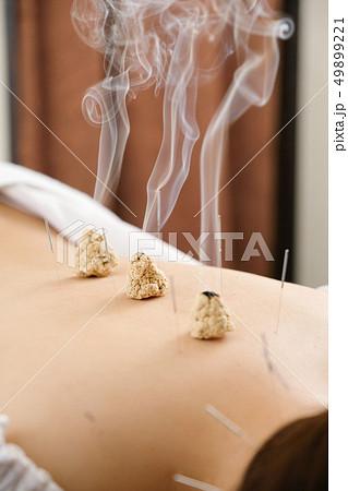 明るい鍼灸院で女性の背中に置かれた煙が出ているお灸 49899221