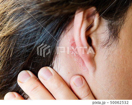 Irritation on the skin behind the ear. Man  50062532