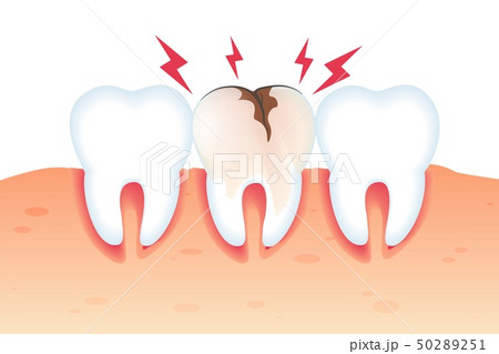 Pain in Broken Tooth Illustration Realistic 3d.  50289251