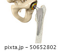 3D illustration of Hip replacement implant installed in the pelvis bone 50652802