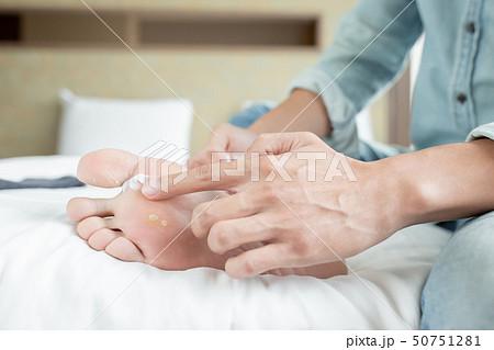 applying cream for athletes foot 50751281
