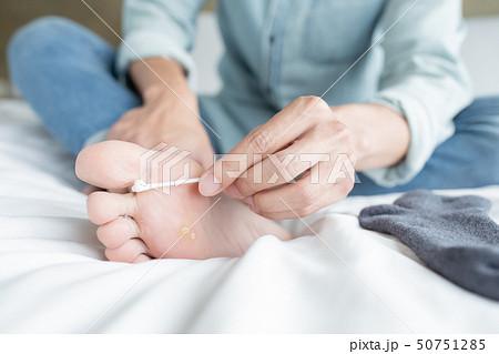 applying cream for athletes foot 50751285