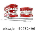 Tooth human implant. Dental concept 3d illustration 50752496
