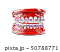 Teeth with brackets, Dental care concept 3d illustration 50788771