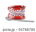 Teeth with brackets, Dental care concept 3d illustration 50788780