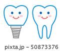 歯 インプラント イラスト 50873376