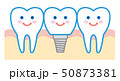 歯 インプラント イラスト 50873381
