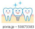 歯 インプラント イラスト 50873383