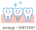 歯 インプラント イラスト 50873387