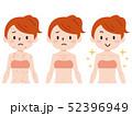女性 湿疹 病気 52396949