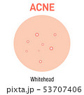 Whitehead skin acne type 53707406
