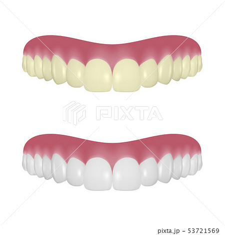 Vector 3d Realistic Render Denture Set Closeup Isolated on White Background. Dentistry and 53721569