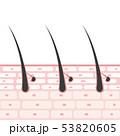 皮膚の断面図 イラスト 53820605