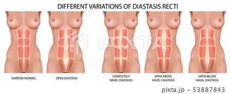 Diastasis recti also known as abdominal separation. 53887843
