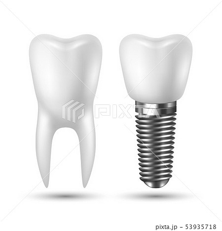 Vector 3d Realistic Render White Tooth Implant Denture Icon Set Closeup Isolated on White Background 53935718