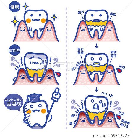 セイカツpickup/歯周病(青罫) 59312228