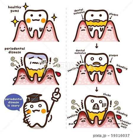 セイカツpickup/歯周病 英語版 59316037
