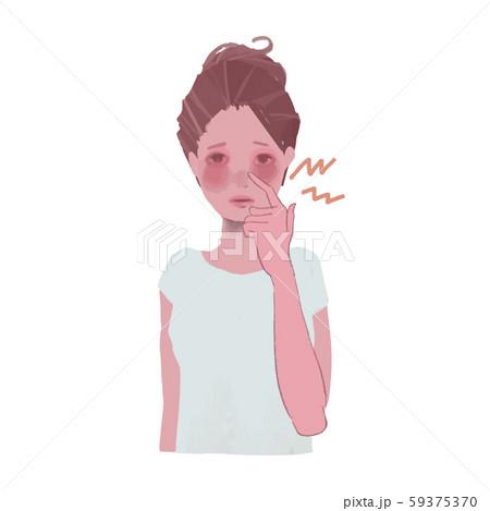 肌荒れの赤みに悩む女性のイラスト3 59375370