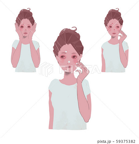 ニキビに悩む女性、ニキビに薬を塗る女性のイラスト 59375382