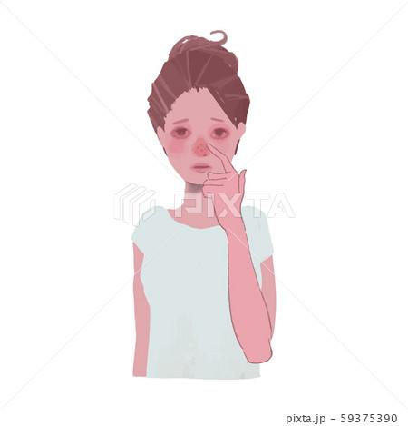 イチゴ鼻に悩む女性のイラスト 59375390