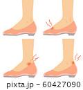 イラスト素材:足 悩み トラブル 痛み パンプス 女性 60427090