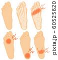 イラスト素材:足裏 悩み トラブル 痛み 女性 60525620
