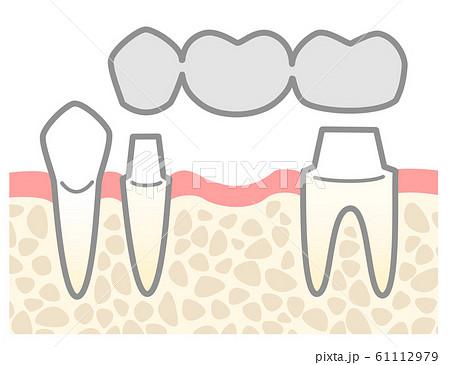 ブリッジ 銀歯 図解 支台の説明 61112979