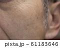50代男性シミ 61183646