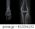 X-ray hand and knee bones 61334132