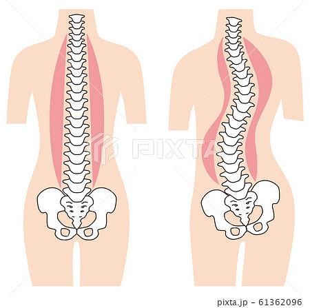 まっすぐな背骨 歪んだ背骨 脊椎側弯症 61362096