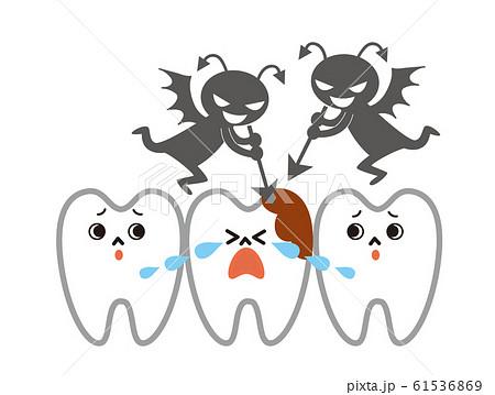 虫歯 61536869