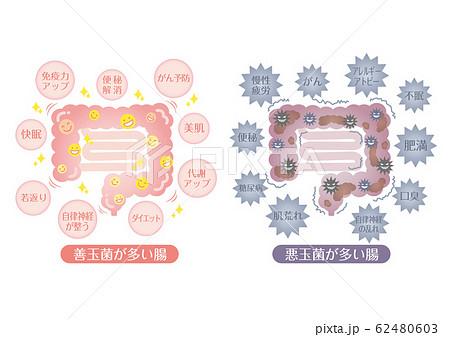 腸活イラスト 善玉菌が多い腸 悪玉菌が多い腸 62480603