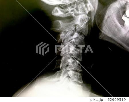 首の骨が逆にカーブしているレントゲン写真 62909519