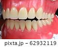 歯 62932119