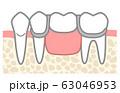 部分入れ歯 図解  ワイヤーしっかり目 歯の色なし 63046953
