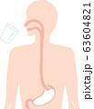 バリウム検査 人体図 63604821